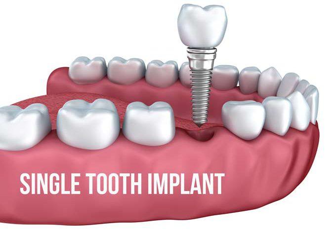 Dental Implants - Simply Dental Chatswood