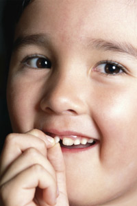 Kids Tooth Loss | Simply Dental Chatswood