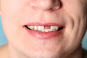 Tooth Loss Adults | Simply Dental Chatswood